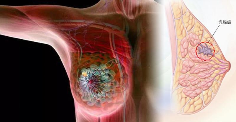 最容易被乳癌盯上的5種女人,第4種人真的好多!!一定要好好檢...