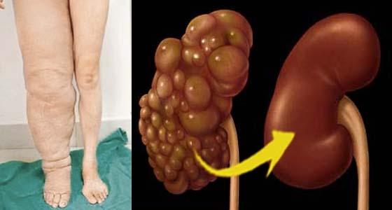 超珍貴!祖傳黃金腎臟排毒法!只要照著做,腎臟立即排毒消水腫!...