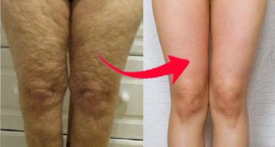 橘皮組織有救了!只要5個動作,大腿立刻變得又細又滑~橘皮掰掰...
