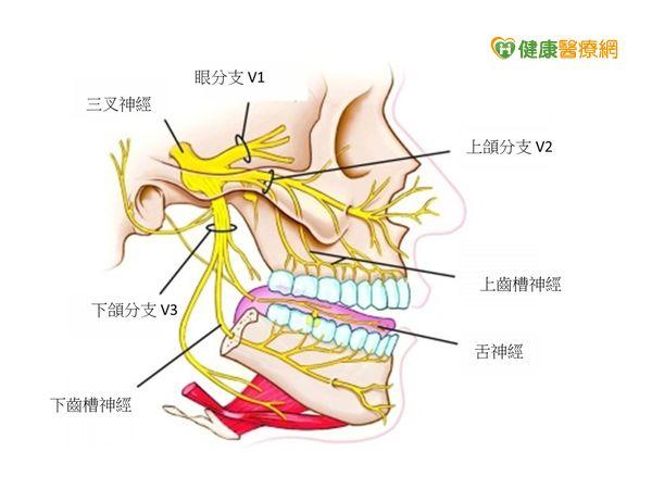 牙痛要人命小心是三叉神經作怪...