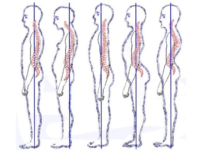 「脊椎」人一生的命根,若是歪了就全毀了!這些方法我試了一週脊...