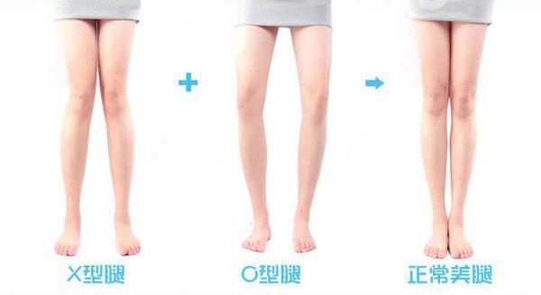O型腿有救了!簡單四步驟給你一雙又直又細的美腿!男人看見都流...