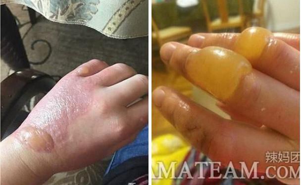超可怕!在太陽下摸到「它」一定要立刻洗手!否則你的手會變成這...