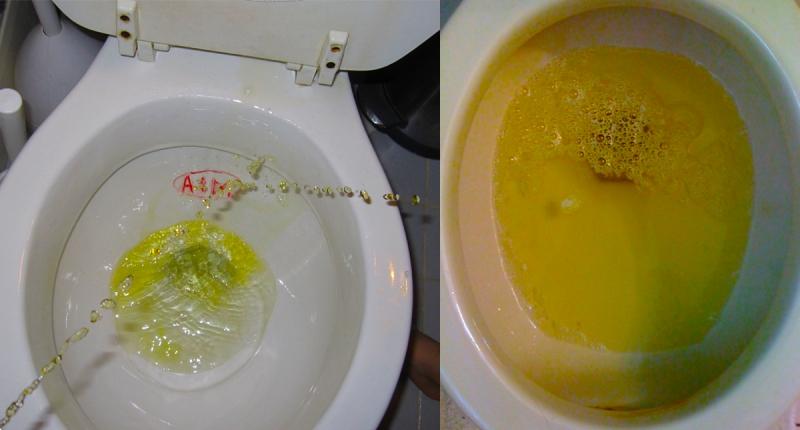 重要!小便有「泡泡」時就得提高警覺!男人的尿分叉代表著......