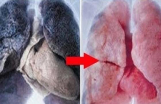 原來喝這個就能讓肺變得乾淨溜溜,愛吸菸的人有救了!!!...