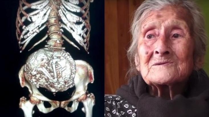 91歲老婦人以為長了腫瘤,到醫院之後才發現竟然是...60年...