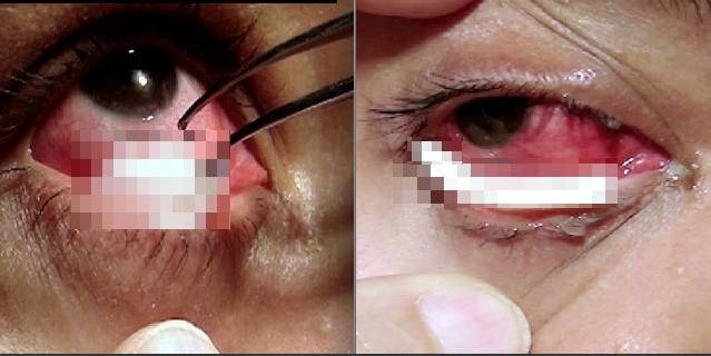 女子染上怪病,眼睛裡面竟然有一條白色的....可怕的是她只要...