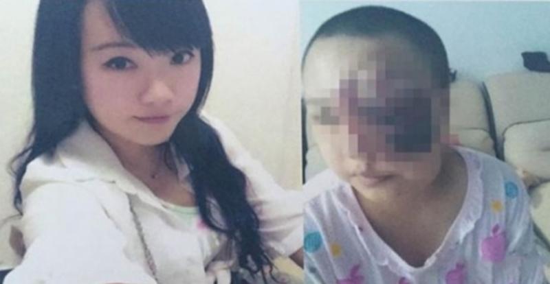 今年20歲的正妹少女,巨大腫瘤吞掉了她半張臉還不斷擴散,真像...