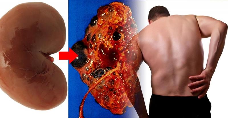 這5個習慣最傷腎!但卻有90%的人天天都在犯!想要養腎就一定...