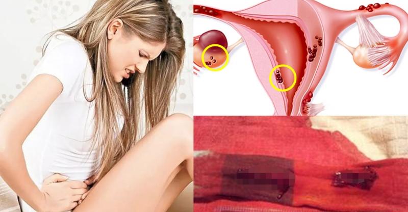 月經量少、過量,甚至是經期突然提前都是妳的身體給妳的警訊,忽...