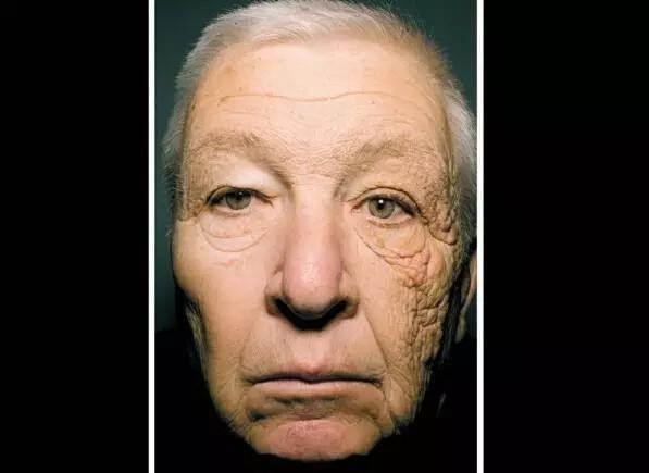開了28年的車,他的左臉竟然比右臉還要老整整18歲!我們都沒...