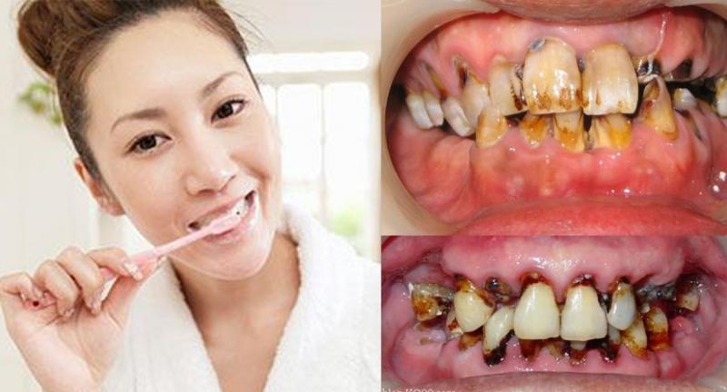今天才知道原來這樣刷牙竟然是錯的!錯誤刷法不僅無法清潔牙齒,...