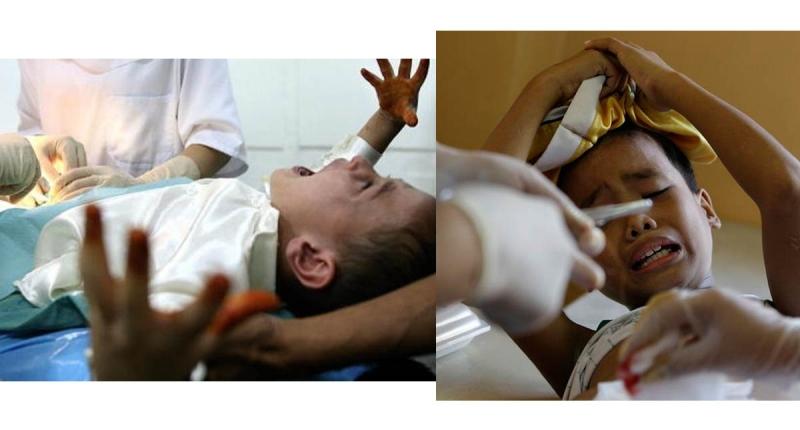 三歲男童突然大哭...媽媽才發現他的小弟弟在流血!緊急送醫縫...