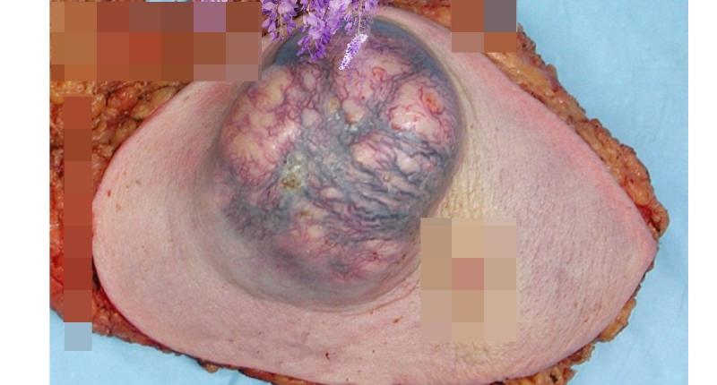 17歲女孩胸部9顆瘤!原因竟是大家都有這2個壞習慣!!...