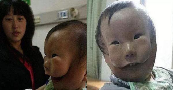這個嬰兒出生自帶「面具」,都沒人敢抱給媽媽看!真相太可怕了....
