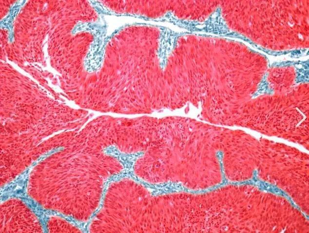 癌細胞能轉為良性嗎?科學家實現重大突破,惡性腫瘤「自動投降」...