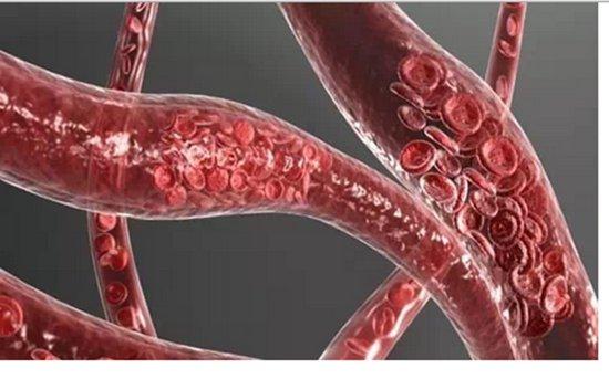 驚!血管堵塞時你不會有感覺,沒救時你才會知道!5分鐘讓堵塞血...
