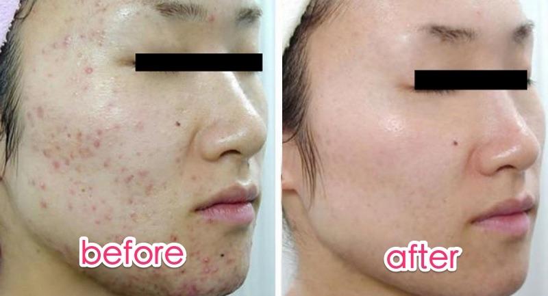 才花不到10塊錢,臉上「痘疤」就能迅速逆生長成嬰兒肌!還以為...