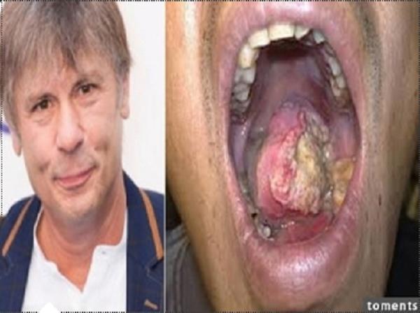 太可怕!搖滾歌手罹患了舌癌,成功復出後,自爆這一切竟然是因為...