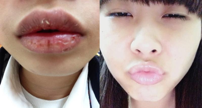 擦護唇膏卻讓嘴唇越擦越乾...我們都以為這樣擦護唇膏是對的~...