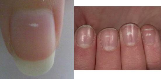 指甲上有白色點點請注意!這些白點其實是這些病的象徵...輕忽...