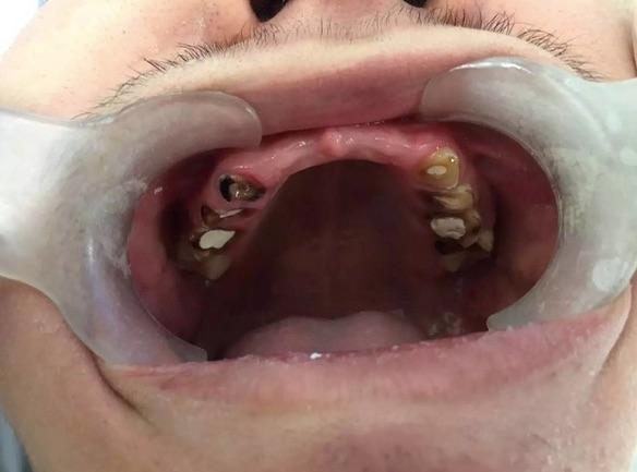 慘不忍睹!19歲高中生一口牙齒拔掉8顆、折斷10顆!他這個習...