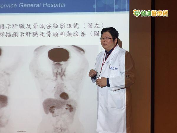 持續發燒當心罹患高致死率的罕見癌...