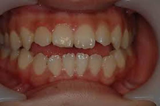 身上有沒有癌症,居然可以從牙齒看出來?這真的太重要了!!!...