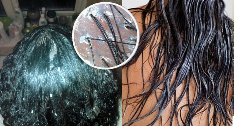 油性髮質的人千萬不能這樣洗!洗頭髮的十二條禁忌,洗不對難怪永...