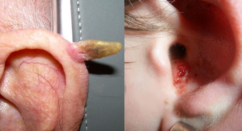 你的5大NG習慣正在養著「耳裡的痘」!它正告訴你,你的健康狀...