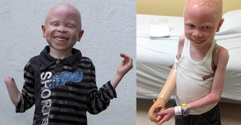男孩才6歲就失去了他的右手!兇手竟然是他的...讓人太心痛!...