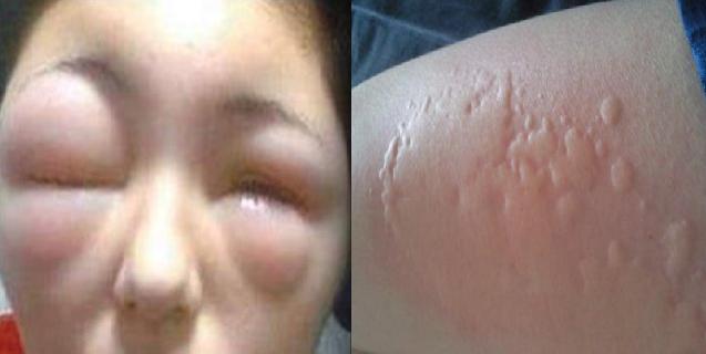 女子醒來時發現自己全身腫的不像話,把男友給嚇壞了!就醫後才發...