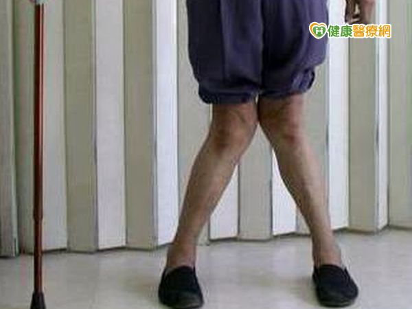 嚴重退化性關節炎XO型腿無法站...