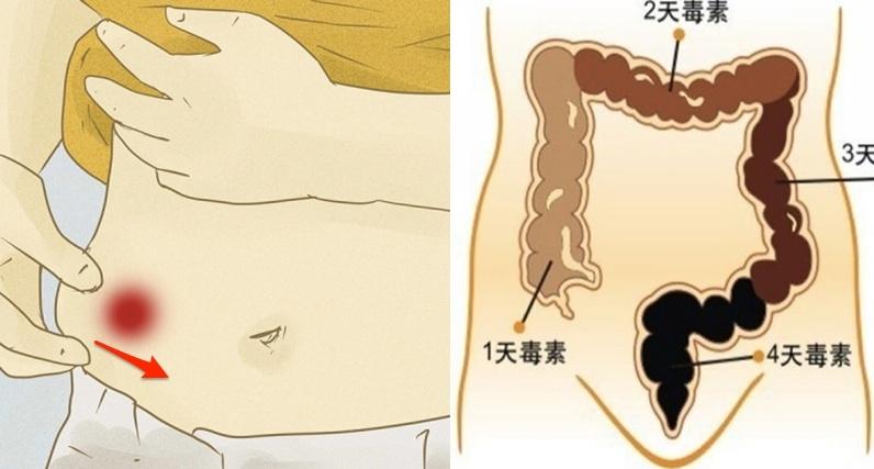救命阿!「宿便」不清竟會演變成「大腸癌」!這個動作護你一生,...