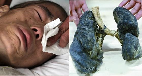 超恐怖!這個男孩才20歲,肺部全爛掉!只因他一直待在...天...