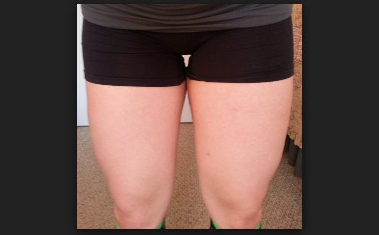 天天運動,全身都瘦了!為什麼「大腿」還是粗?原來是因為…...