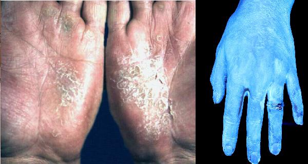 你能想像這些「白點」都是在你手上的細菌嗎?實驗結果讓你看到最...