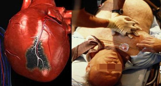 超重要!心梗發生時,只有十秒的時間可自救!簡單3步驟立即救回...
