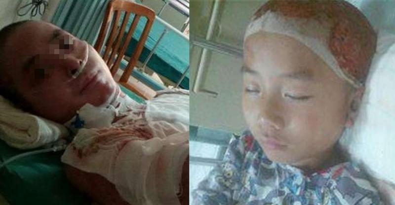 為了拯救燒傷命危的父親,這對6歲小兄妹忍著痛進了手術房把這個...