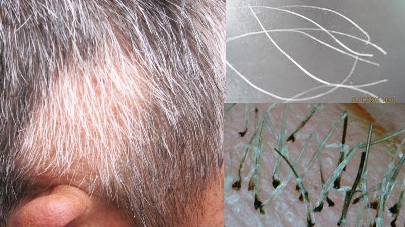 終於有解!「白頭髮」到底能不能拔?這問題困擾我許久...原來...