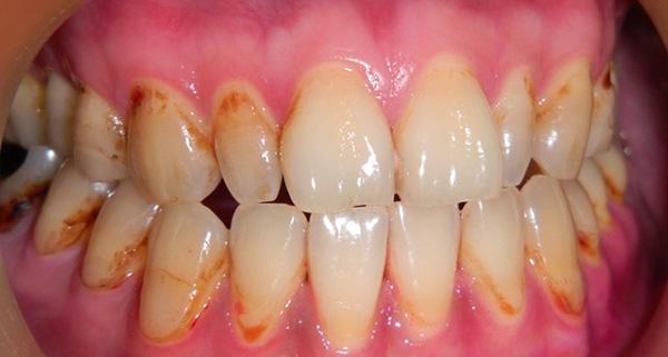 世界衛生組組稱:全球100%的成人有蛀牙...
