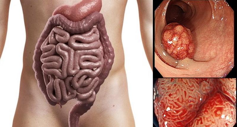 嚴重注意!八種「隔夜菜」絕對不能吃!!腸胃不適、脹氣各種傷疲...