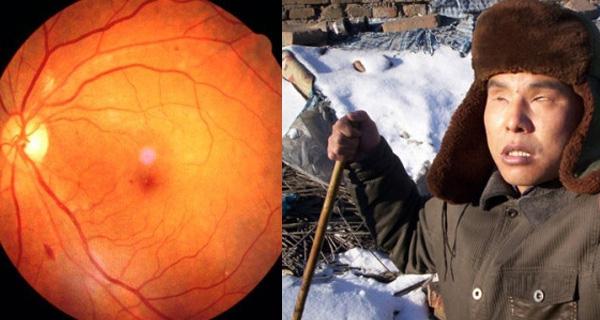 視網膜剝離有多嚴重,這五類人要注意了?!...