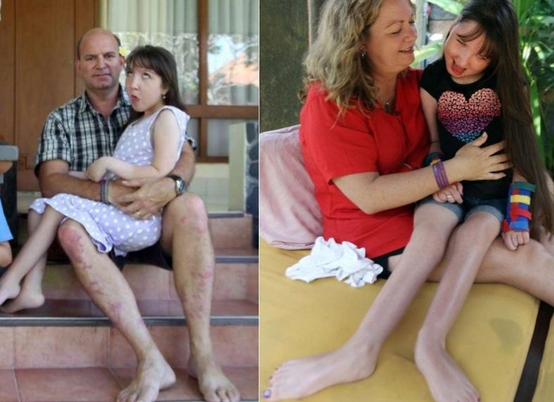 父母為了停止讓女兒「停止長大」,整整花了四年的時間研究出打藥...