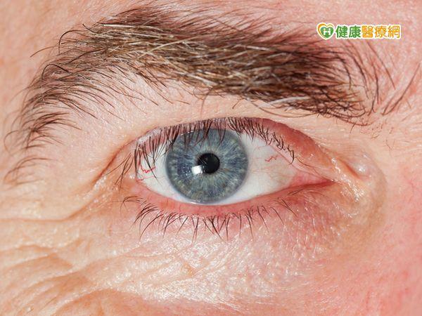 銀髮族眼睛模糊玻璃體黃斑部牽引導致...
