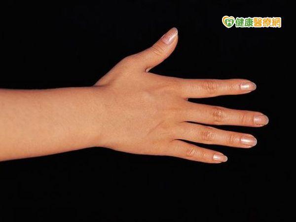 手指發麻變白原來是雷諾氏現象惹禍...
