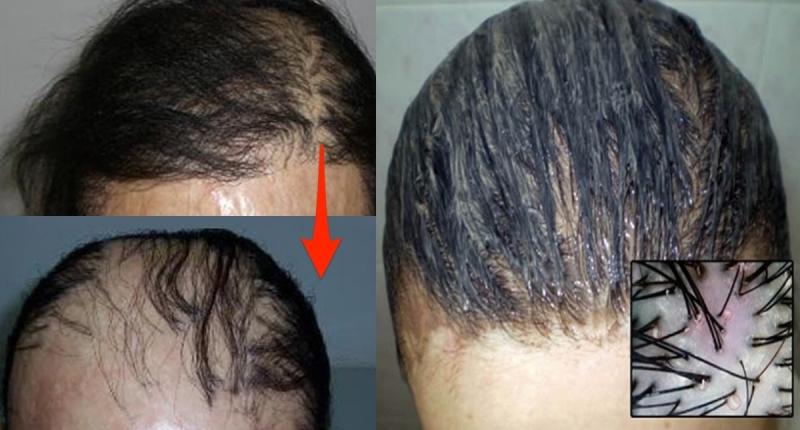 太可怕了!99%的女人都不知道,掉頭髮的根本原因都只是你一個...