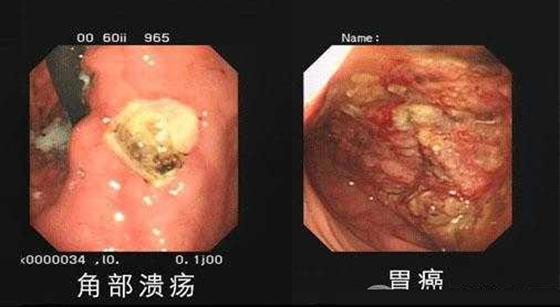 胃癌率最少的地方居然是在山東!!專家說:因為他們都吃這兩樣東...