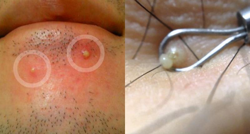 太震驚了!痘痘那個「白膿」原來是....還以為他擠出來痘痘就...