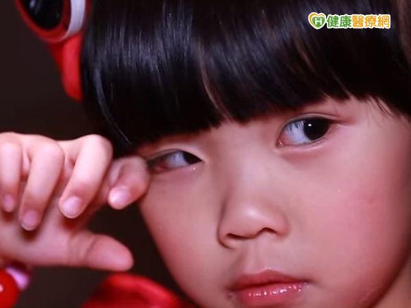 二歲小妹針眼腫腫油炸品惹禍...